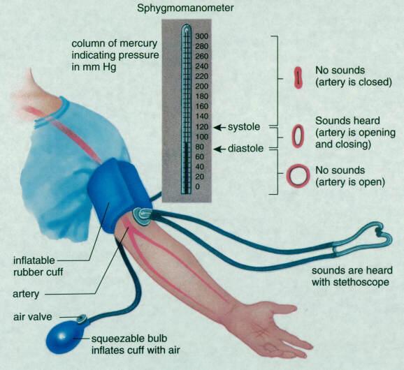 Гипертоническая болезнь капельница