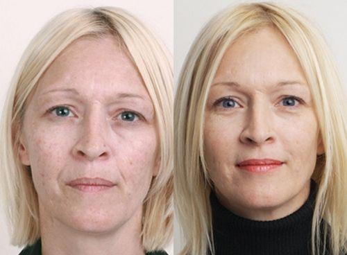 фото до и после пилинга 6
