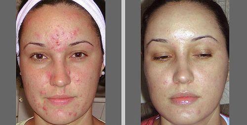 фото до и после пилинга 3