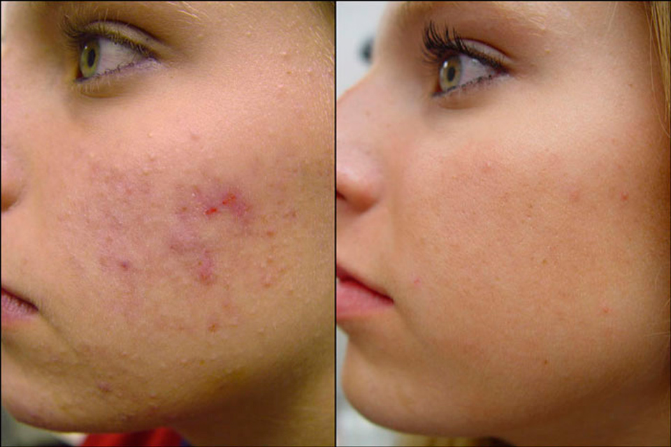 handy-ideas-to-help-minimize-your-acne
