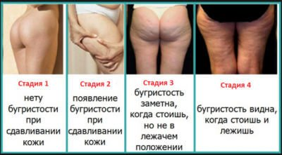 целлюлита на 4 стадии