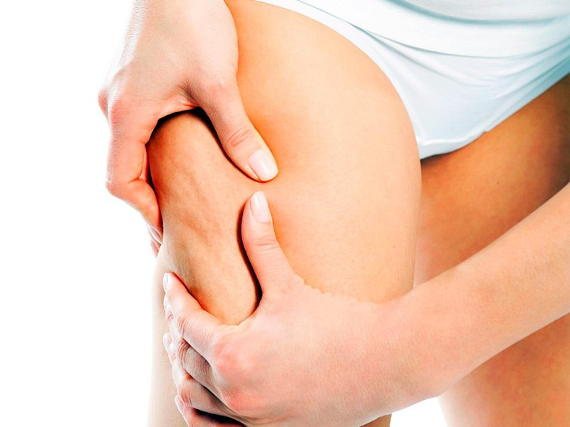 img-how-to-determine-the-cellulite-on-her-leg