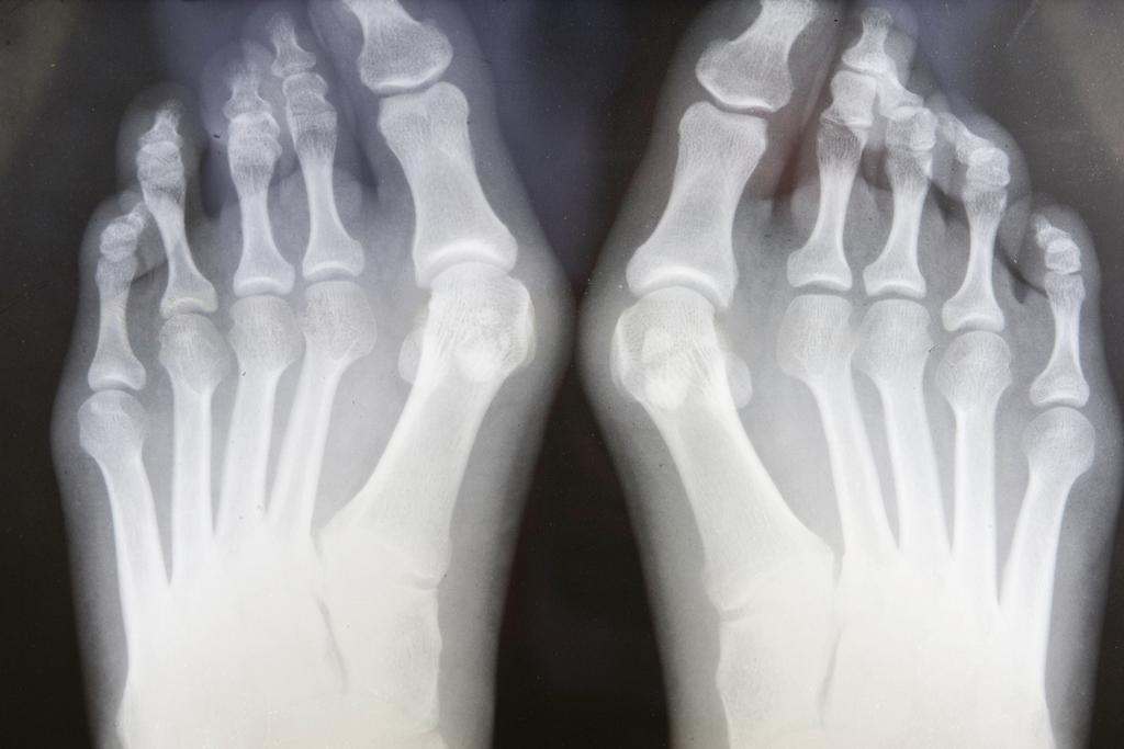Выпирающая косточка на ноге — лечение