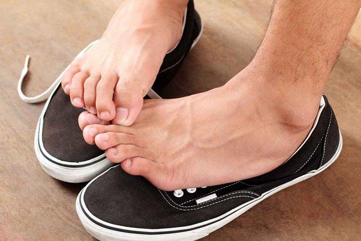 Грибок на ногах — фото, крема, чем лечить