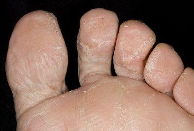 Грибок стопы — фото, симптомы, лечение