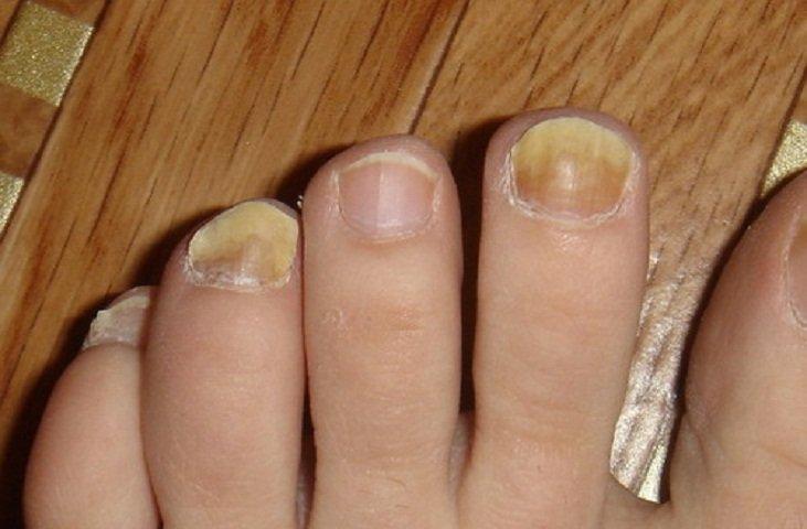Микозан от грибка ногтей отзывы цена в украине
