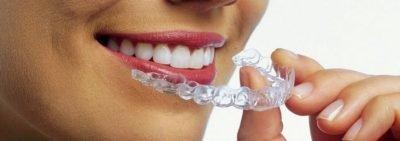 Каппы-элайнеры — выравнивание зубов без брекетов
