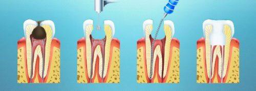 Лечение корневых каналов зубов