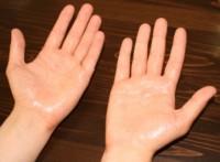 Потеют руки. Почему потеют ладони и что с этим делать?