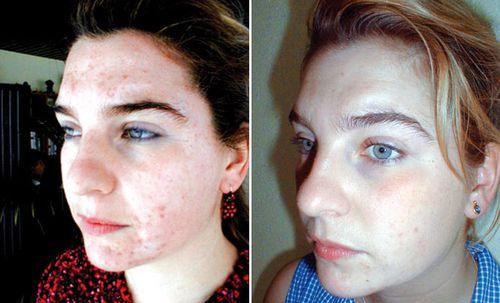 фото до и после пилинга 1