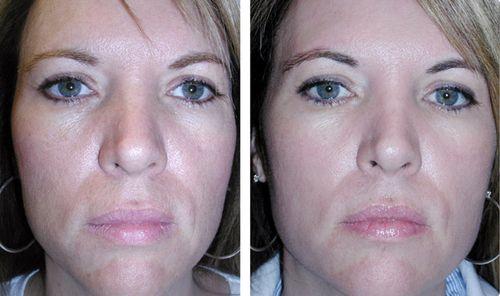 фото до и после пилинга 5