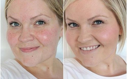 фото до и после пилинга 2
