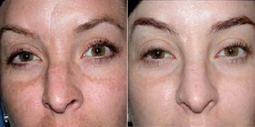 фото до и после пилинга 4