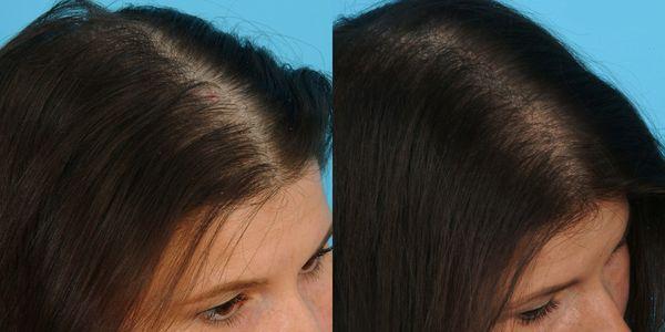 плазмолифтинг волос фото до и после