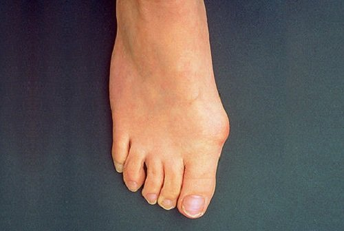 Bunion on a woman's right foot